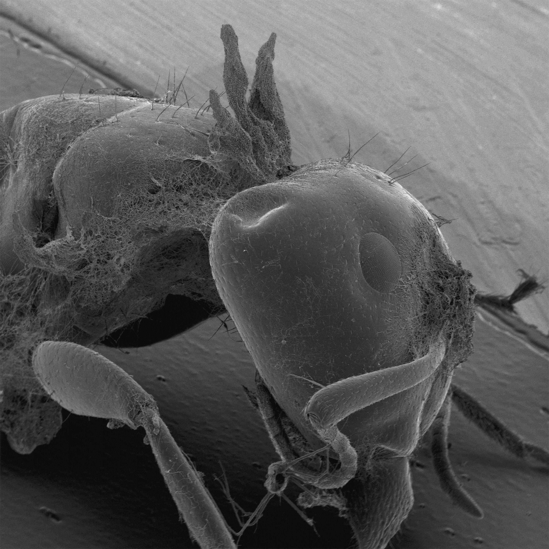крупные паразиты организме человека