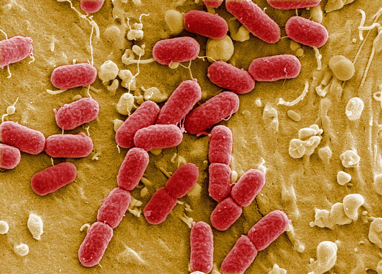 Фото та назви бактерій 24 фотография